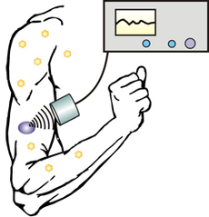 DCN Corp® - New technique allows diabetics to control insulin release with an injectable nano-network and portable ultrasound device.  Credit - North Carolina State University (NC State) and the University of North Carolina at Chapel Hill (UNC-Chapel Hill)